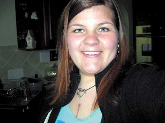 Kelly-Jones-after-surgery-D